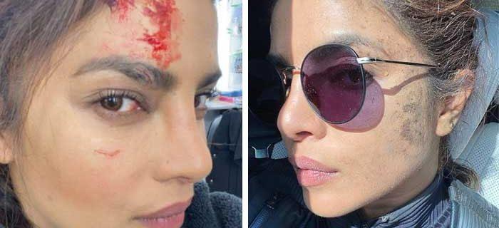 Priyanka Chopra gets injured while shooting